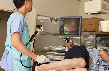 内視鏡検査(大腸カメラ):イメージ